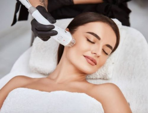 What are the Benefits of IPL Laser Treatments?